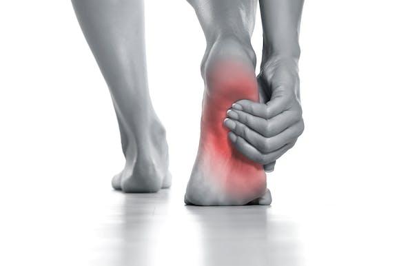 足 の 裏 が 痛い